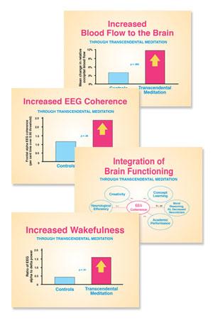Brain-charts