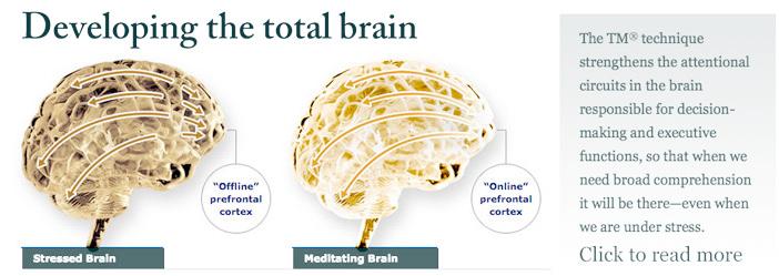 BrainBanner62500